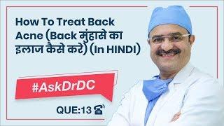 How To Treat Back Acne (Back मुंहासे का इलाज कैसे करे)|#AskDrDc Ep 13 | ClearSkin, Pune | (In HINDI)