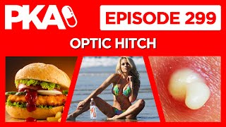 PKA 299 w/ OpTic Hitch - Fat Shaming Playmate , Fast Food Tales, Pimple Stories
