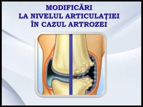 Este posibil să încălziți articulațiile genunchiului cu artrită