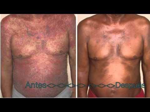 Psoriasi malattia cronica di pelle