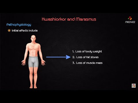 Video Kwashiorkor and marasmus - USMLE Biochemistry