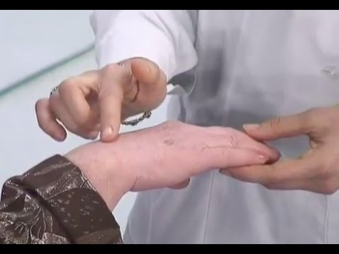 Причина появления пигментных пятен на лице и руках