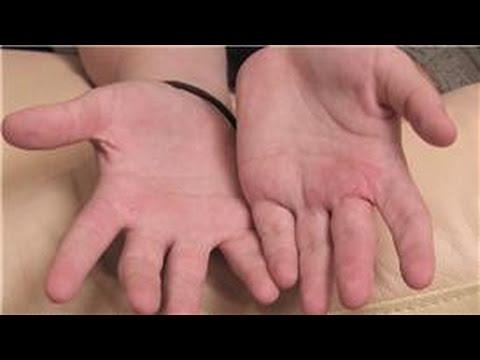 Codice di dermatite atopic