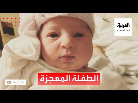 العرب اليوم - شاهد: قصة طفلة أصغر من أمها بعام