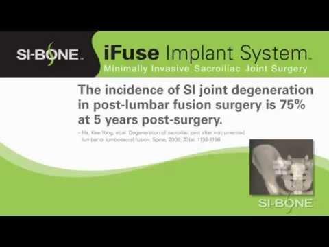 Come smettere di osteoartrite delle articolazioni