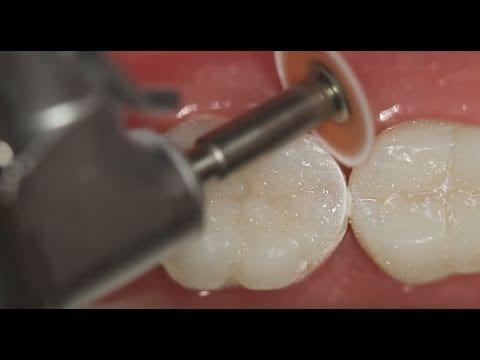 Шлифовка и полировка при реставрации жевательных зубов