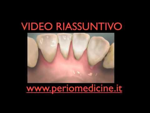 Artrite infettiva allergica dellarticolazione dellanca