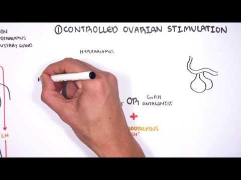 Zapłodnienie in vitro (IVF)