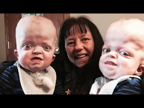 pfeiffer syndrome pogo portal social entertainment network