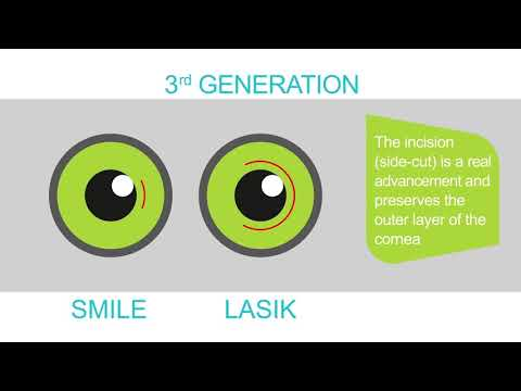 SMILE Laser Vision Correction explained