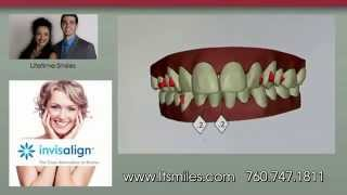 Invisalign Escondido | Dr. McDonald