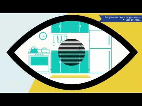 Купить оправу для зрения в украине