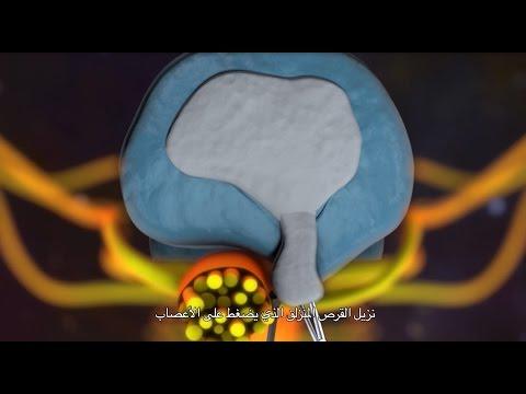 Schmerzen im unteren Rücken gestört Urinieren