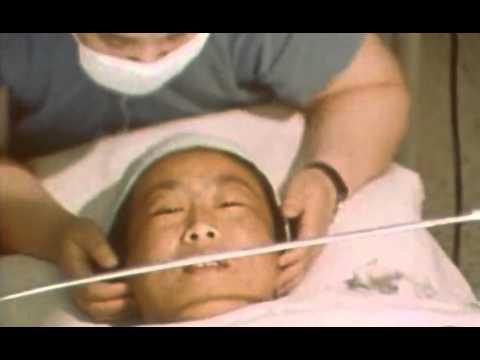 Perdita di peso sul dottore di un fukutsudza