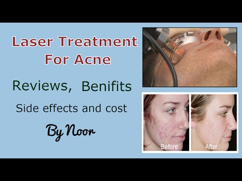 Video Laser treatment for acne - Reviews, benifits ,Side effects and cost by Noor