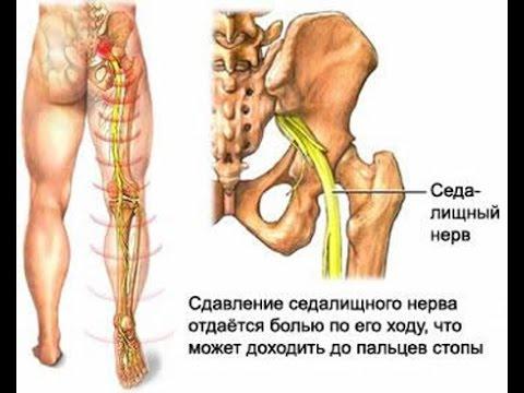 Правильная гимнастика при шейном остеохондрозе