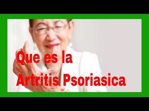 Que por el hinchazón como la psoriasis