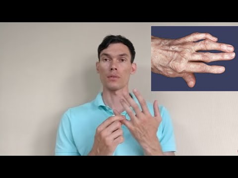 АРТРОЗ ПАЛЬЦЕВ РУК РАЗРАБОТКА arthrosis of the fingers