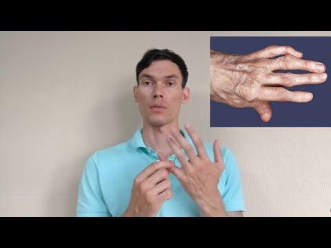 Amoxiclav în tratamentul articulațiilor