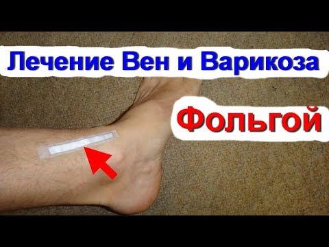 Фольга. Лечение вен  ног фольгой. Болят ноги - варикоз и боли в ногах. Лечение варикоза / Ed Black