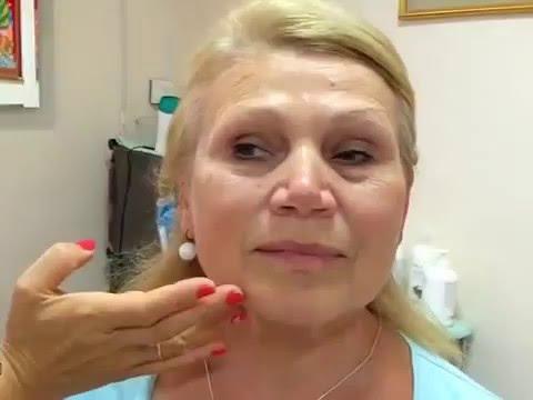 Как избавиться от отека после удара в глаз