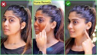 No Gelatin (NEW) PERMANENT FACIAL HAIR REMOVAL AT HOME | Rinkal Soni