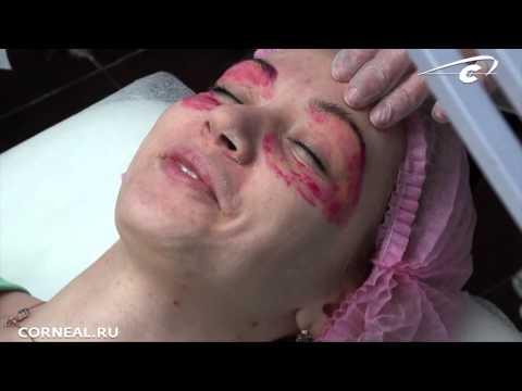 Процедуры по омоложению лица в ярославле