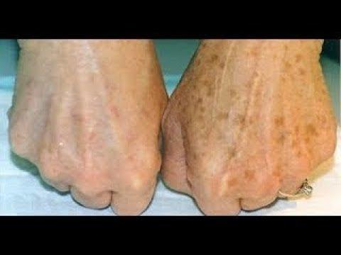 Как отбелить кожу от пигментных пятен