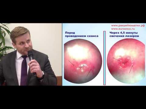 Лечение простатита уролог андролог