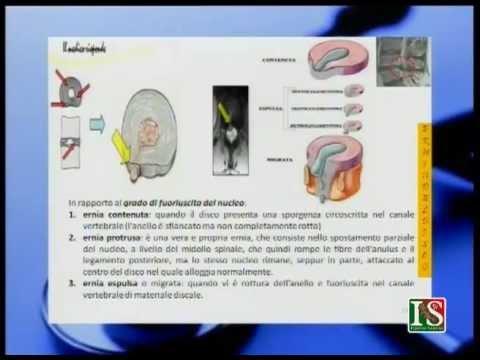 Applicazioni con Dimexidum sulle articolazioni