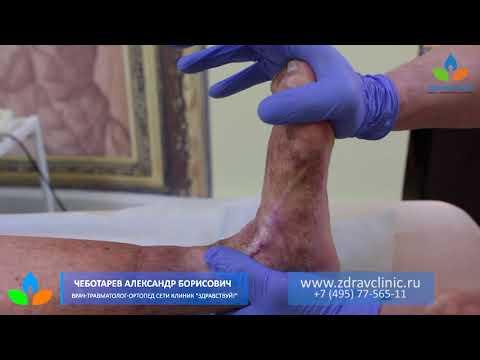 Durere severă în articulația umărului după vânătăi