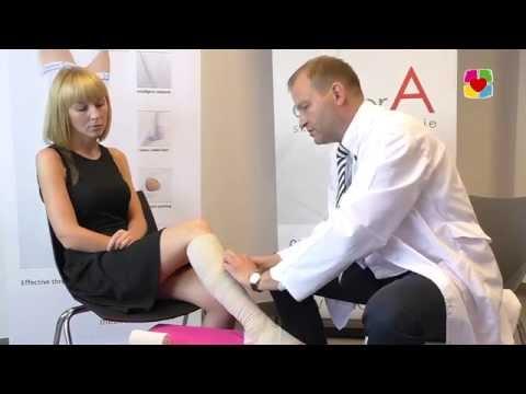 Wideo Jak zrobić operację na żylaki nóg