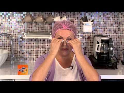Косметическая процедура подтяжка лица нитями