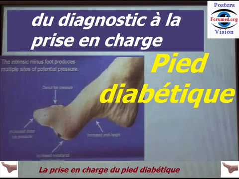 Kit de diagnostic pour le diagnostic neurologique neuropathie diabétique