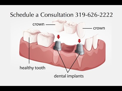 Dental Crowns North Liberty Iowa | 319-626-2222