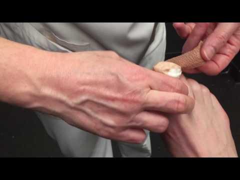 Über die Behandlung der Schuppenflechte von den Volksmitteln