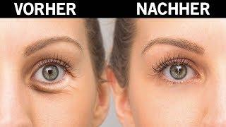 So bekommst du Augenringe in nur 20 Minuten weg!