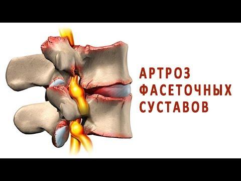 Что такое артроз дугоотросчатых суставов?