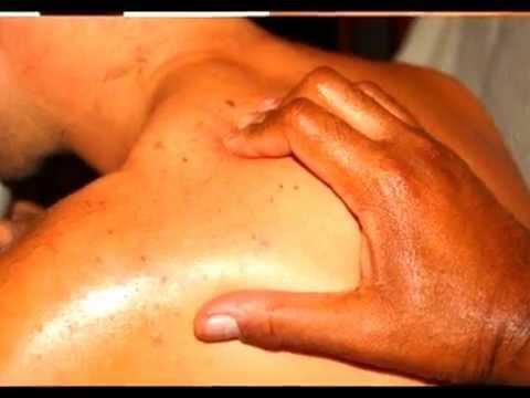 Adenoma prostatico di massa