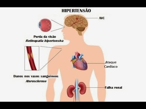 Hipertensão nos sintomas da tiróide e tratamento