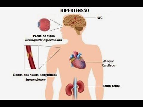 Limites de pressão arterial elevada