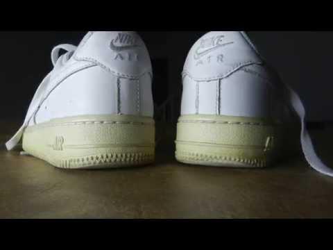 Koślawe stopy u dzieci leczonych