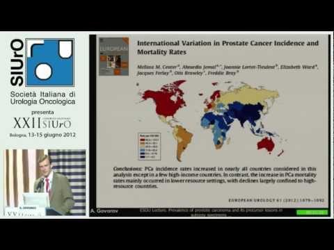 Calcificazione diffusamente eterogenea della prostata