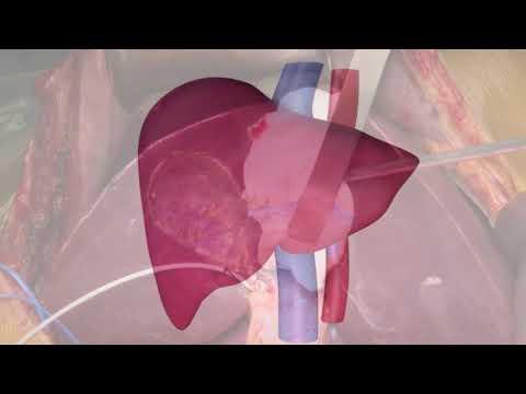 Trapianto di fegato da donatore vivente