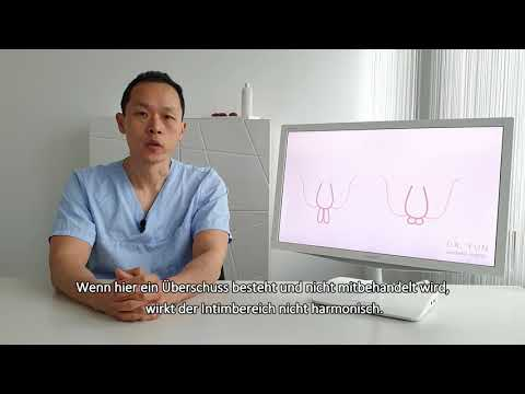 Labioplastik vorher nachher
