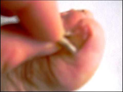 Le traitement de la varicosité par le laser à tchite les prix