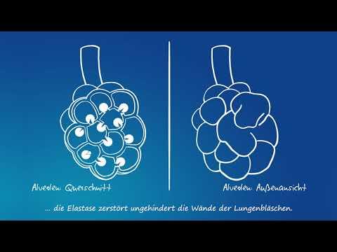 Propranolol für hypertensive Krise