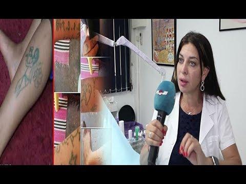 العرب اليوم - أخصائية إزالة الوشم تؤكّد كذب