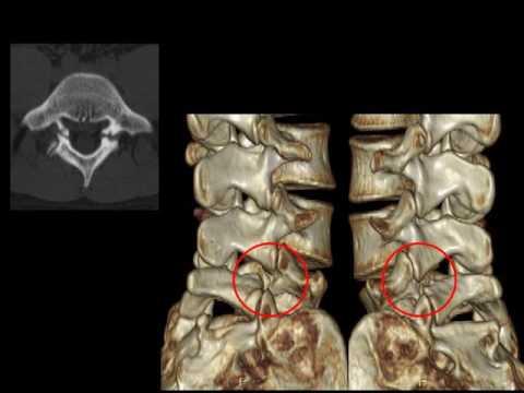 Osteocondrosis de la columna cervical. síntomas