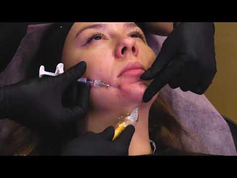 Коррекция подбородка с Belotero Volume
